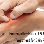 Natural and Effective Treatment for Skin Rashes