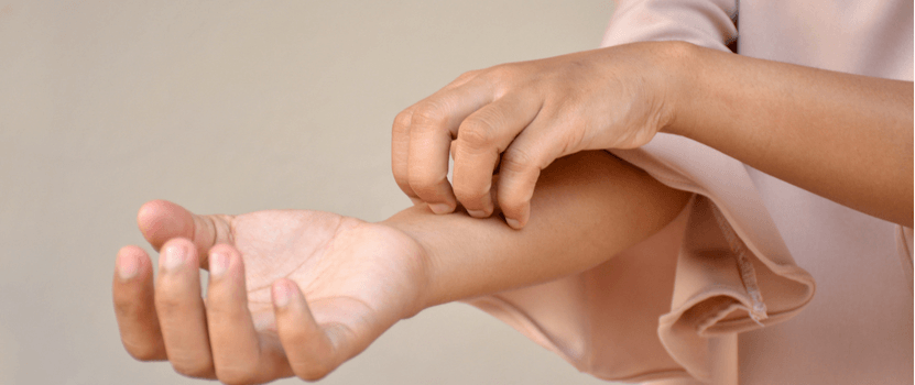 Homeopathic treatment for eczema | RC Homeopathy