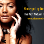 Best Natural Vitiligo Remedy with Homeopathy
