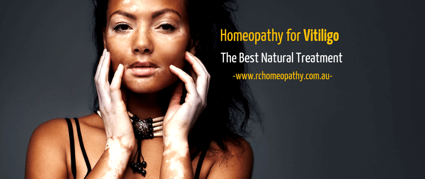 Best Natural Vitiligo Treatment with Homeopathy | RC Homeopathy