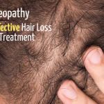 Homeopathy as an Effective Hair Loss Remedy