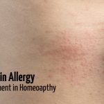 Skin Allergy Remedy in Homeopathy