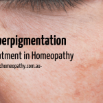 Hyperpigmentation Treatment in Homeopathy