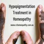 Hypopigmentation Remedy in Homeopathy