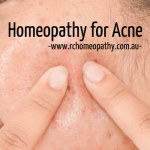 Hormonal Acne Natural Treatment with Homeopathy