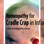 Cradle Cap Treatment in Homeopathy