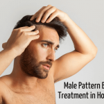 MALE PATTERN BALDNESS TREATMENT IN HOMEOPATHY?