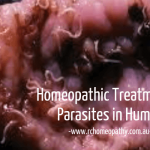 Homeopathic Treatment for Parasites in Humans?
